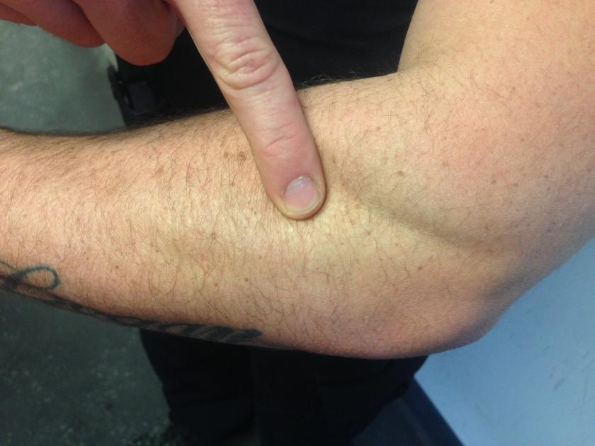 Injured Elbow